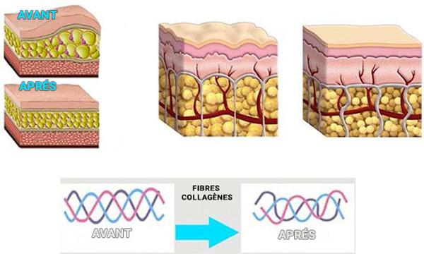Les effets du clife21 sur la peau, effet raffermissant