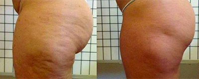 Soin anti-cellulite