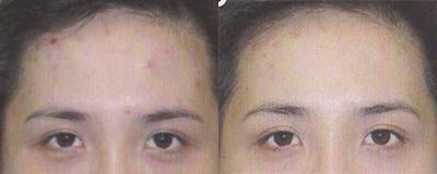 Soin apaisants contre l'acné