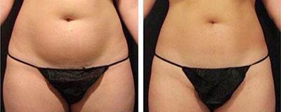 Diminution de la taille au niveau du ventre