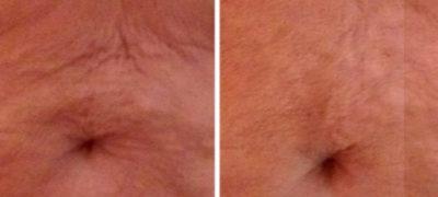 Densifie la peau du ventre