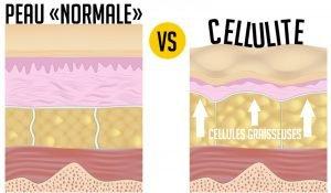 Peau normales vs cellulite